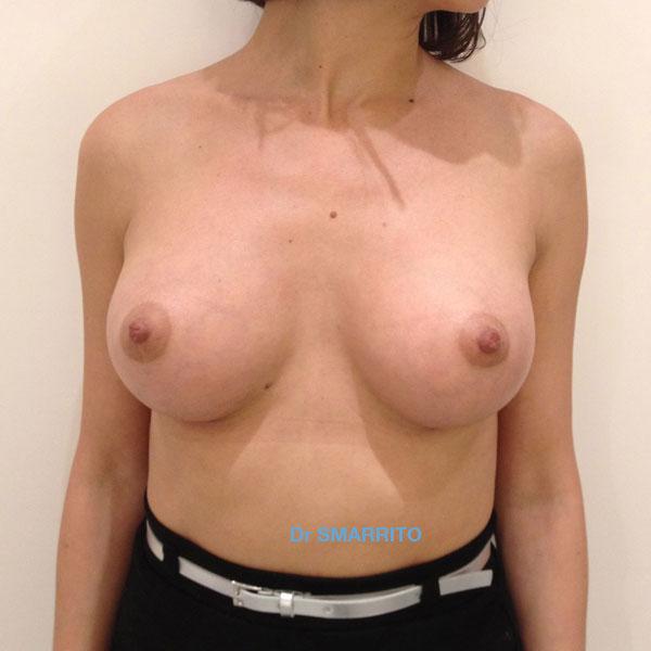 Le pubis chevelu et une petite poitrine