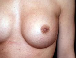 Cicatrice d'augmentation mammaire de type micro-cicatrice autour du téton