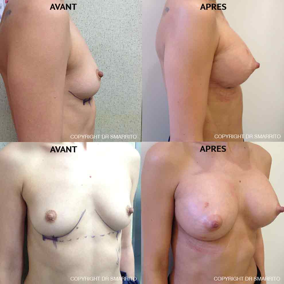 Photographies Avant Après d'augmentation mammaire avec prothèses anatomiques 300 cc