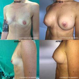 Photographies Avant Après d'augmentation mammaire avec prothèses 300 cc