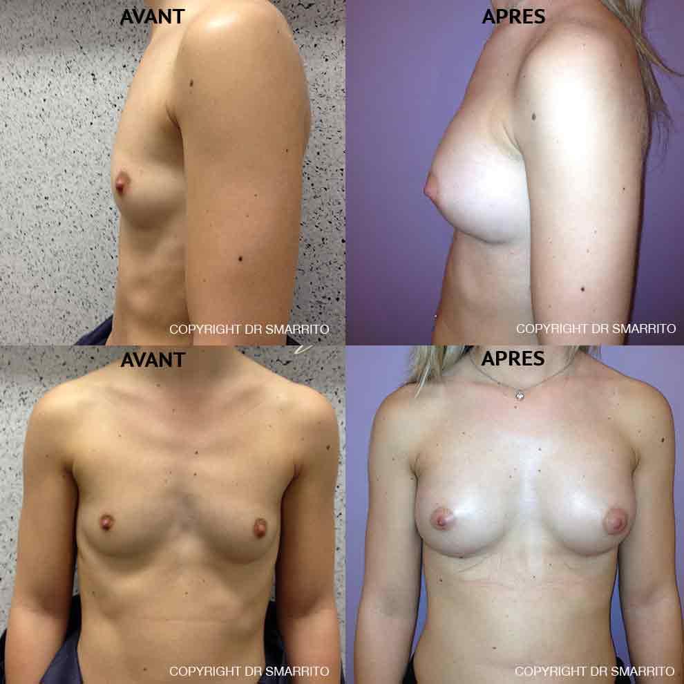 Photographies augmentation mammaire avec des prothèses anatomiques 240 cc
