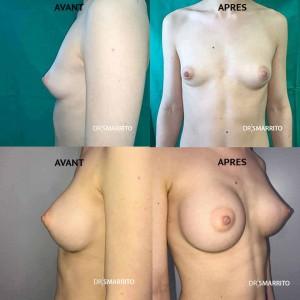 Augmentation mammaire avec des prothèses rondes