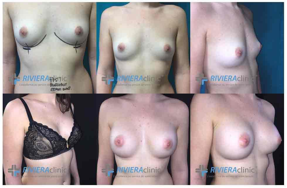 Exemples-de-photographies-Avant -Après augmentation mammaire