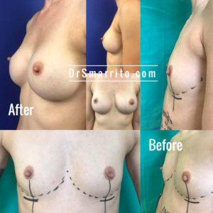 Augmentation mammaire par le Dr Smarrito