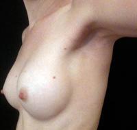 Cicatrice d'augmentation mammaire par voie axillaire