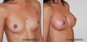 augmentation mammaire par prothese mammaire